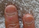 この深爪を見よ!汚い手でゴメン・・・